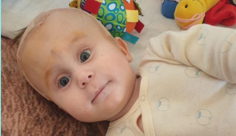 11 mēnešus vecajam Iļjam no Olaines nepieciešama steidzama operācija